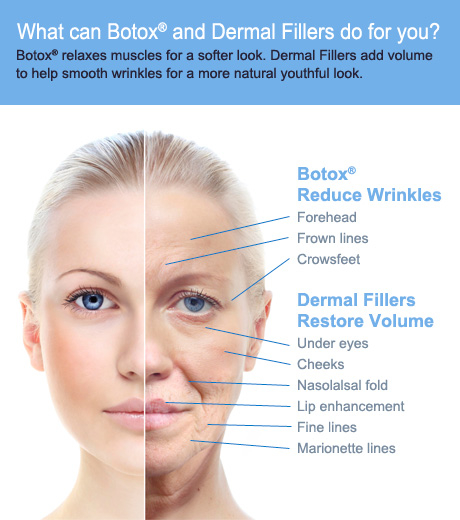 wrinkles on cheeks how to fix botox