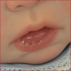 Mouth Sores a small bubble or blister | Medimanage.com