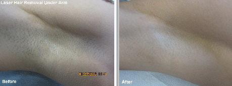 Laser Hair Removal Under Arm